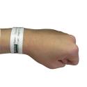 Allergy Awareness Wristband 100